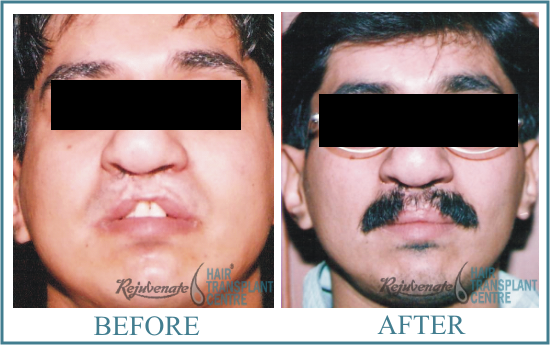 Face Surgery Result Men
