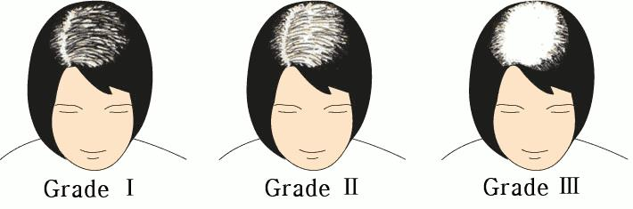Female Pattern Hair Loss in Grade