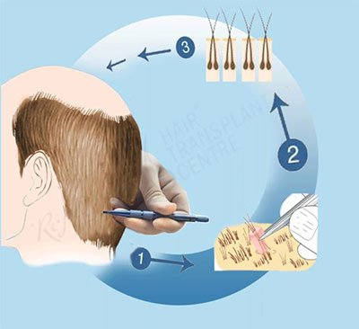 Follicular Unit Extraction method