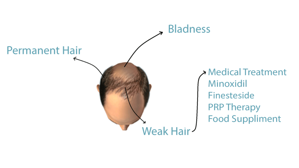 Hair Loss in Men structure