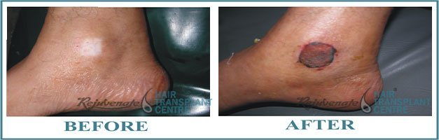 Just After Skin Grafting Vitiligo