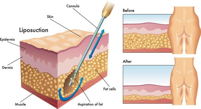 Liposuction Treatment Procedure