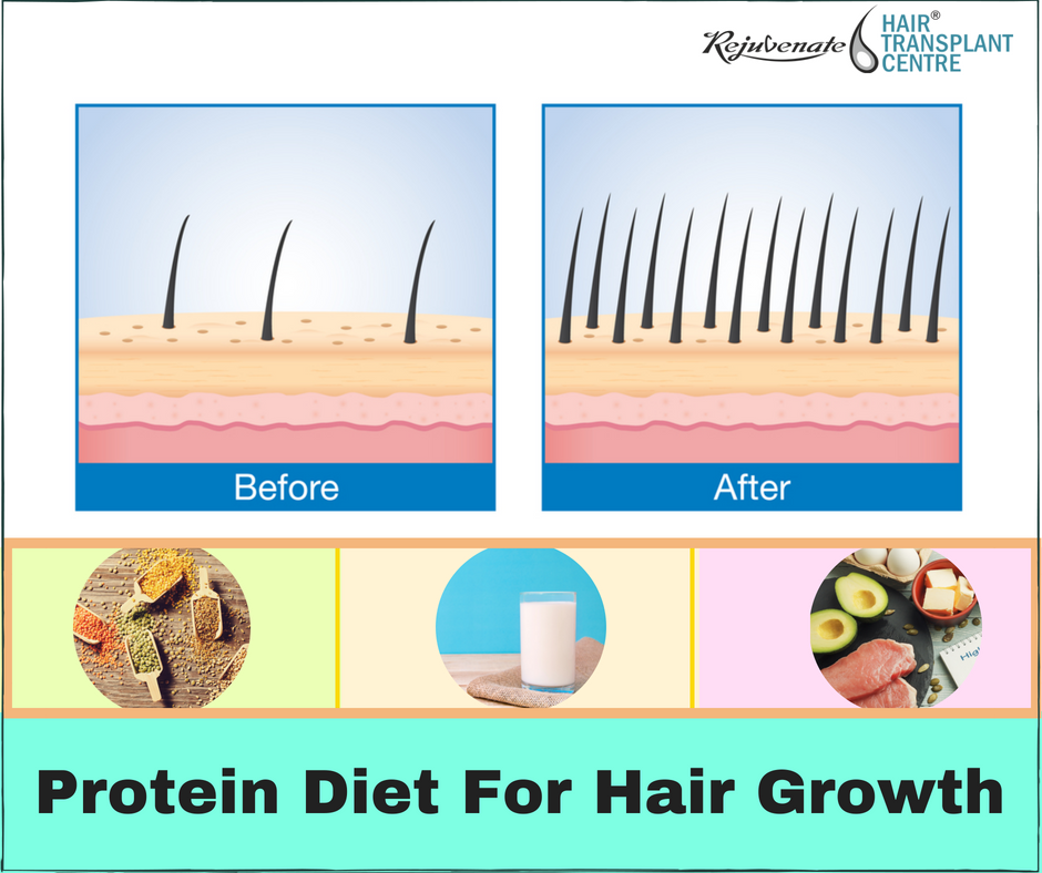 Protein-Diet For-Hair-Growth