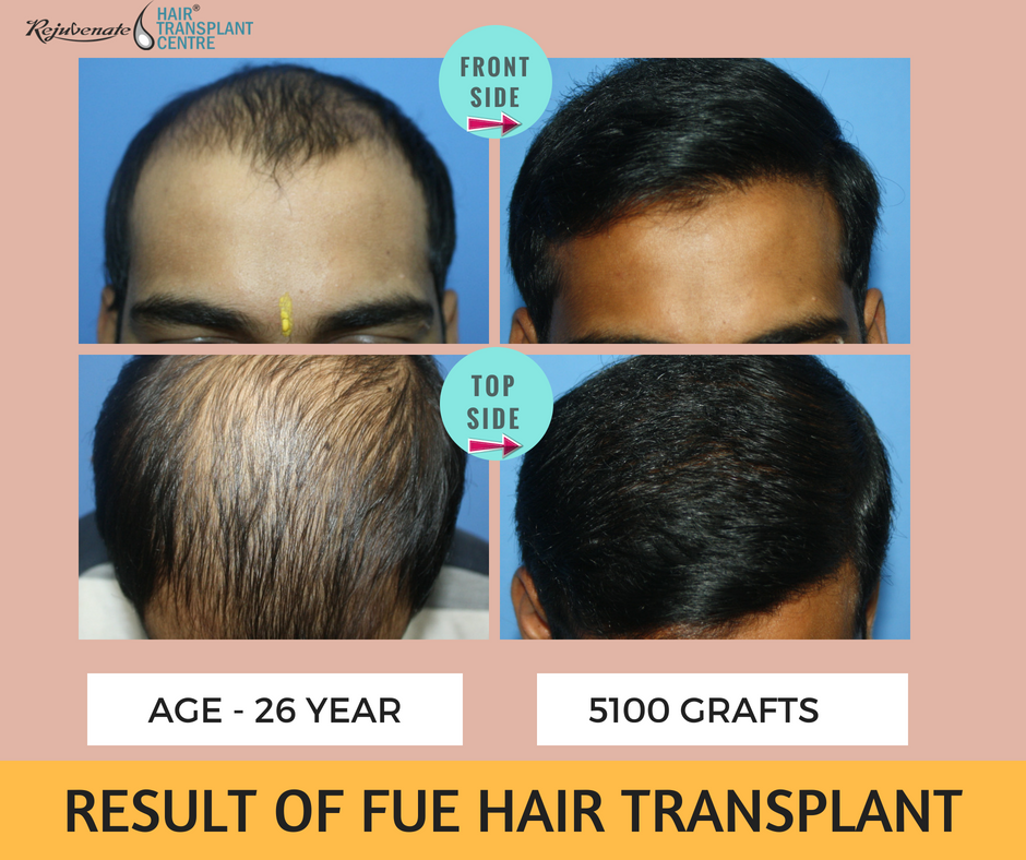 best result of hair transplant at young age