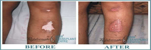 Result of Skin Grafting Vitiligo