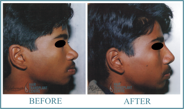 Rhinolplasty POSTOPERATIVE result