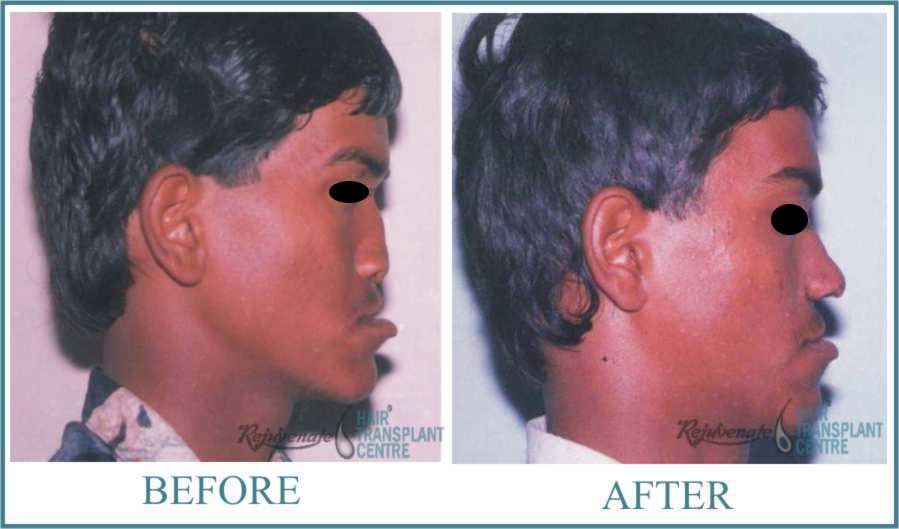 Rhinolplasty PREOPERATIVE Result