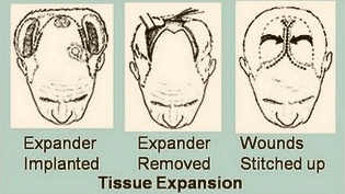 Scalp Expansion