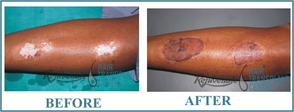 Surgery for vitiligo