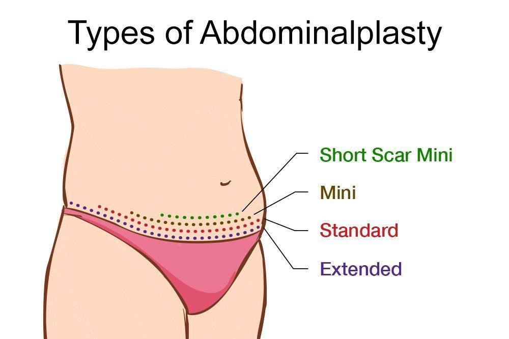 Type of Abdominoplasty