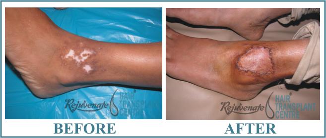 Vitiligo Ankle Result