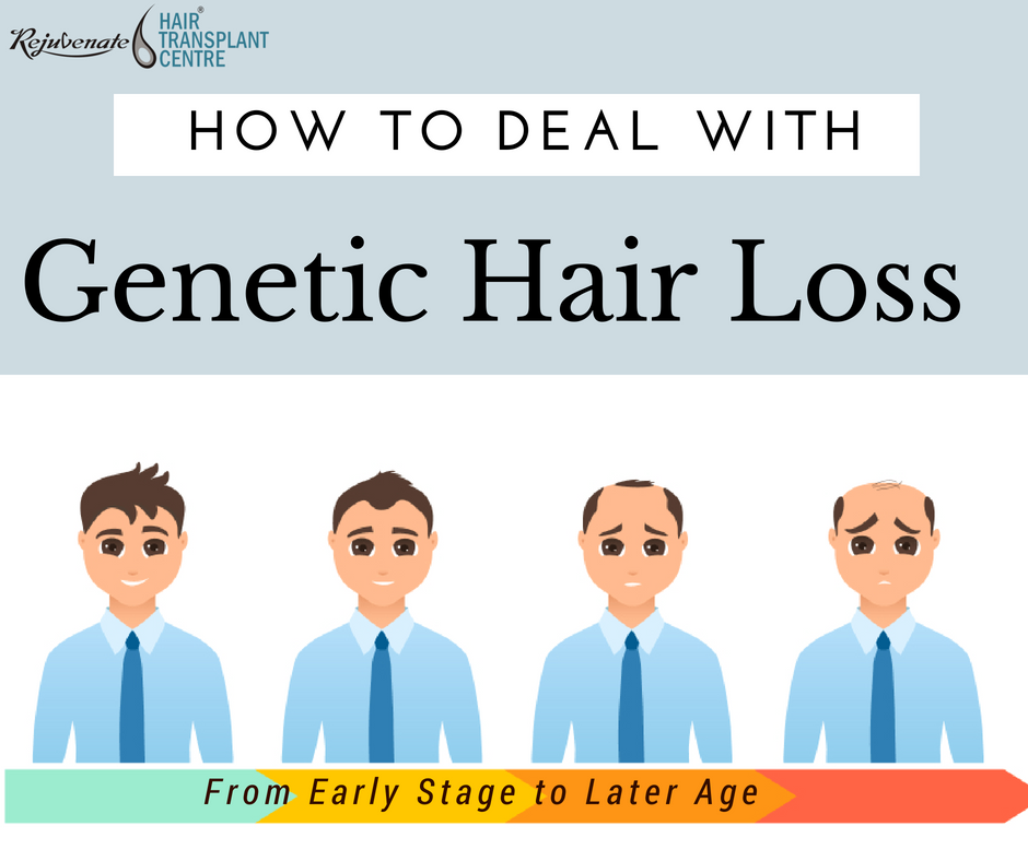 genetic-hair-loss