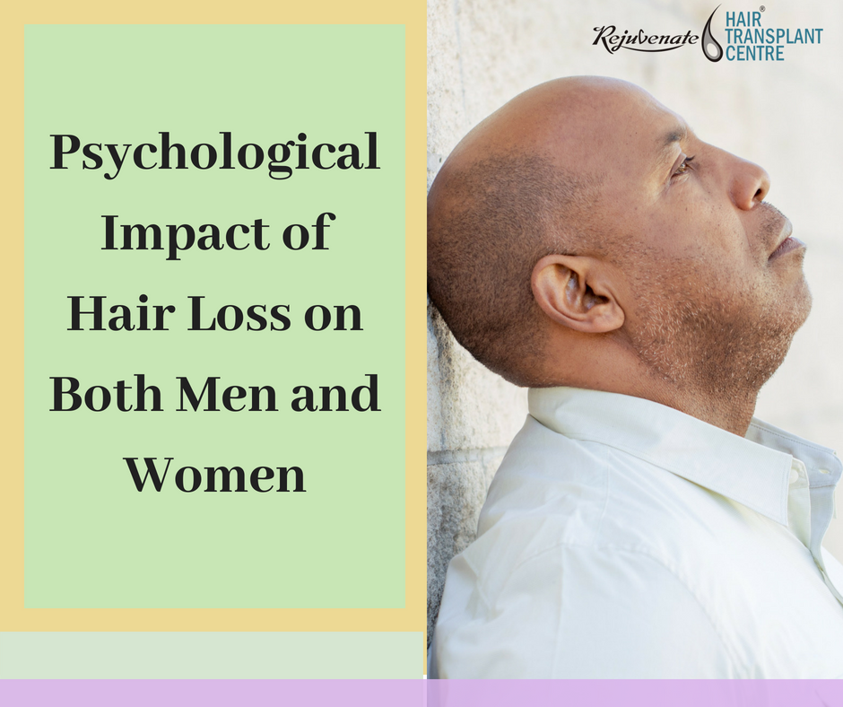 Psychological Impact of Hair Loss Both Men and Women