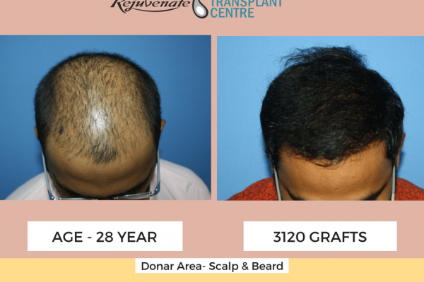 result of fue hair transplant 6 months