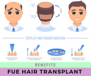 benefits of fue hair transplant