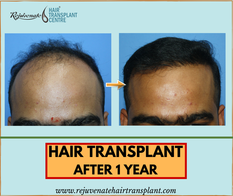 hair transplant result after 1 year