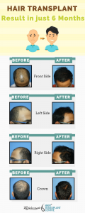 hair transplant result after 6 months