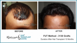 3130 Grafts FUT Hair Transplant Result After 10 Months