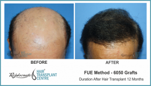 6050 Grafts FUE Hair Transplant Result After 12 Months (2)