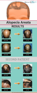 ALOPECIA AREATAA RESULTS