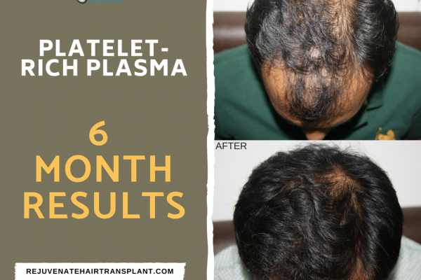 6 Months PRP Treatment Result