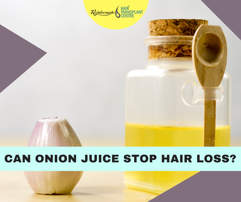 Can Onion Juice Stop Hair Loss