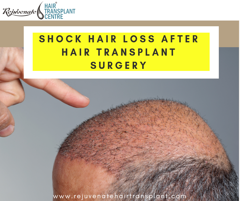 shock hair loss after hair transplant