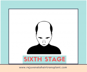 hair loss stage 6