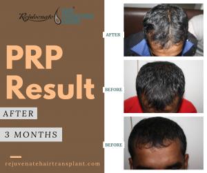 PRP 3 MONTHS RESULT