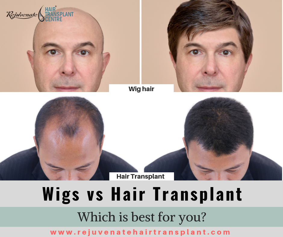 wig vs hair transplant