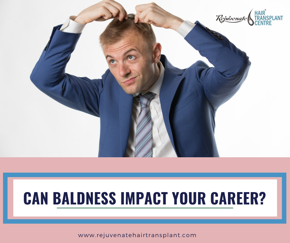 Can Baldness Impact Your Career