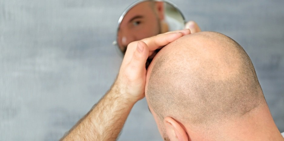 Solution for Baldness Problem