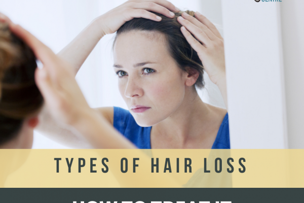 Types of Hair Loss and How to Treat It