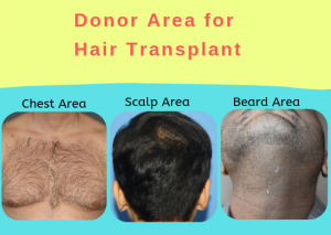 What is a Good Donor Area for Hair Transplant