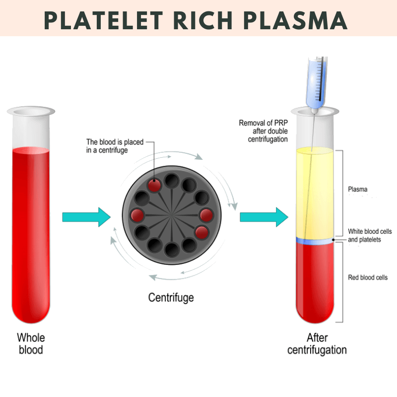 Preparation of PRP ( Platelet Rich Plasma )
