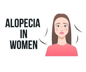 ALOPECIA-IN-WOMEN