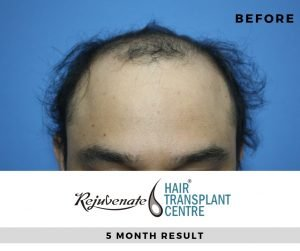 Before 5 Month FUE hair transplant front side