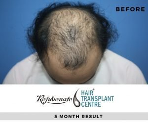 Before 5 month FUE Hair Transplant