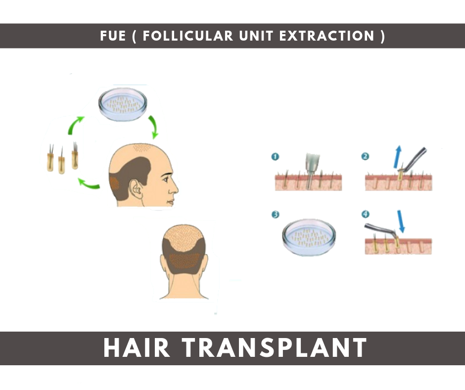 Best method of hair transplant