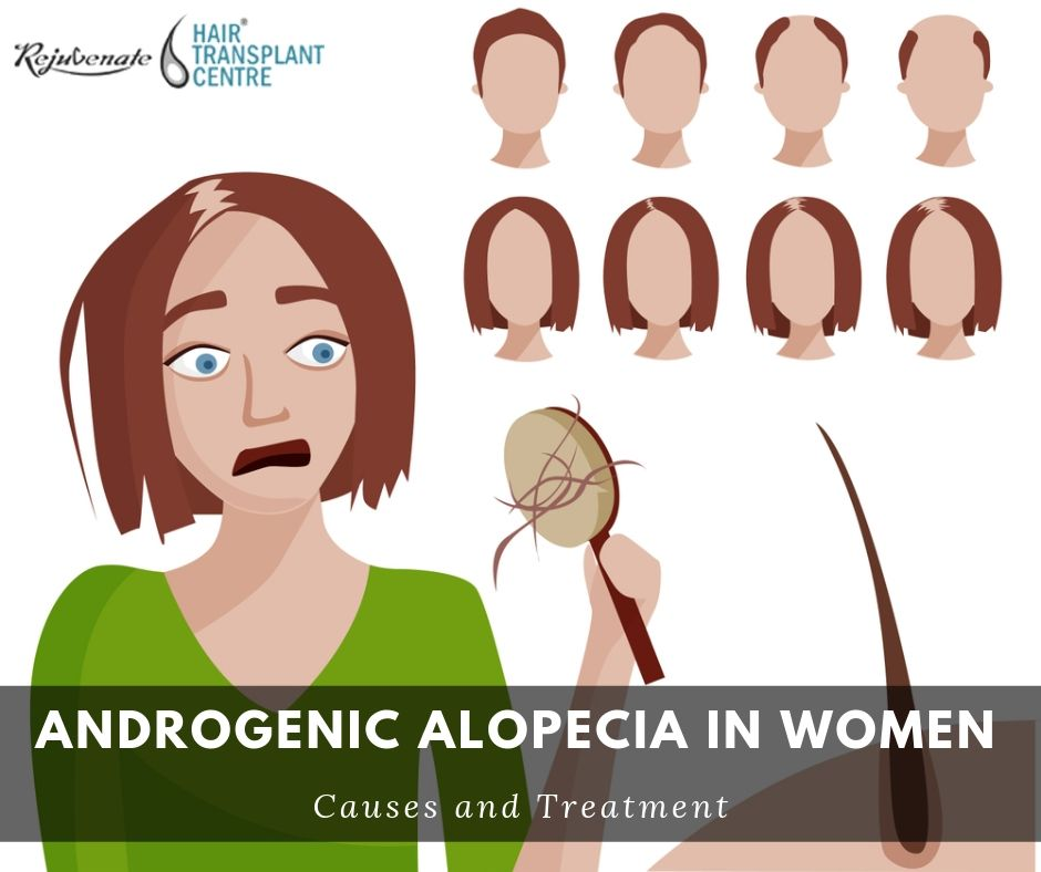 Androgenic Alopecia in Women