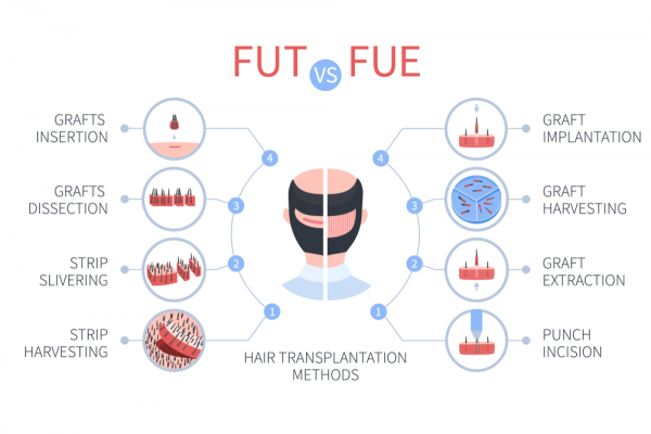 Difference Between FUE and FUT Hair Transplant-min