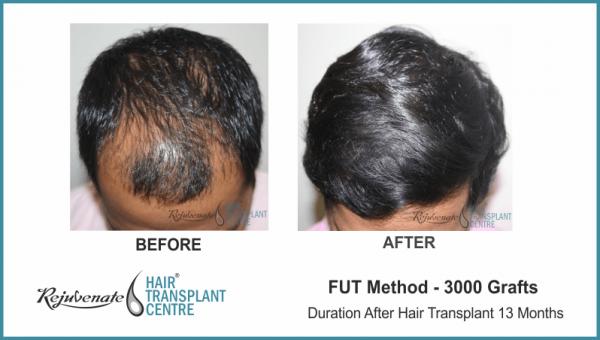 Fut Hair Transplant Result