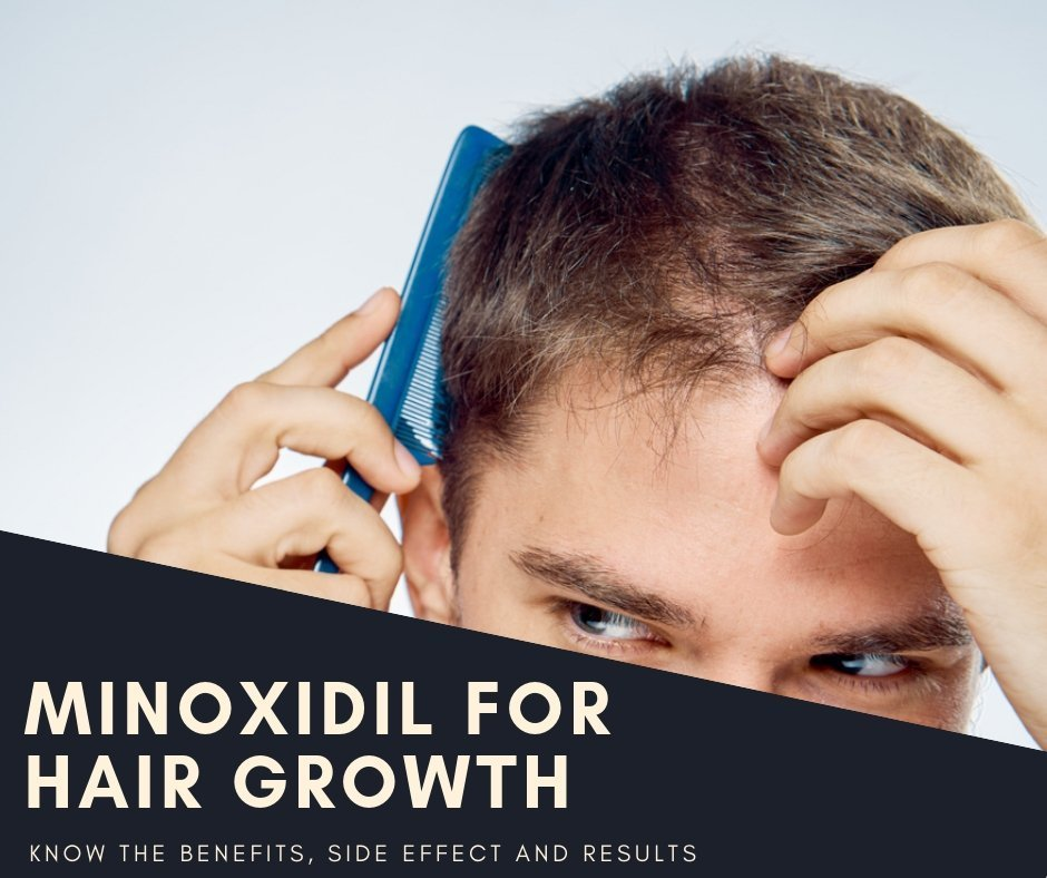 MINOXIDIL FOR HAIR GROWTH