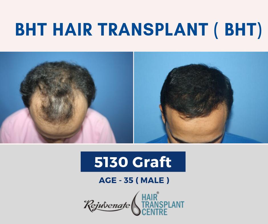 BHT Method - Best Hair Transplant in India