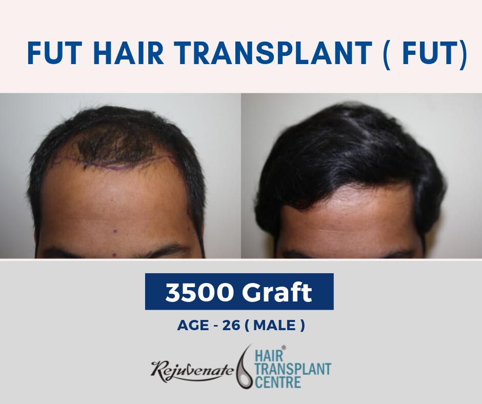 FUT Method - Cost of Hair Transplant