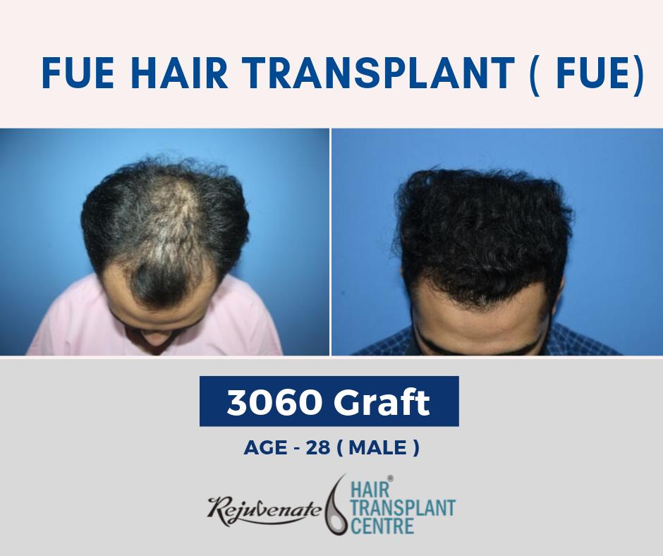 Hair Transplant in India- FUE Method of hair Transplant