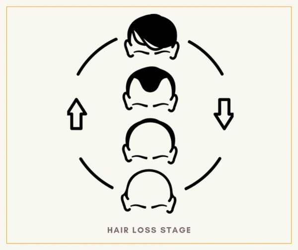 Hair Loss Stage