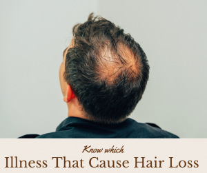 Illness That Cause Hair Loss
