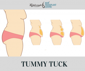 When Should I Do a Tummy Tuck?