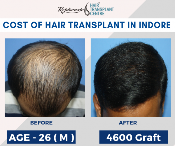 cost of hair transplant Indore